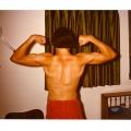 1974 13yo nice scoliosis